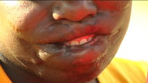Nyelisani Sidimela - muthi victim