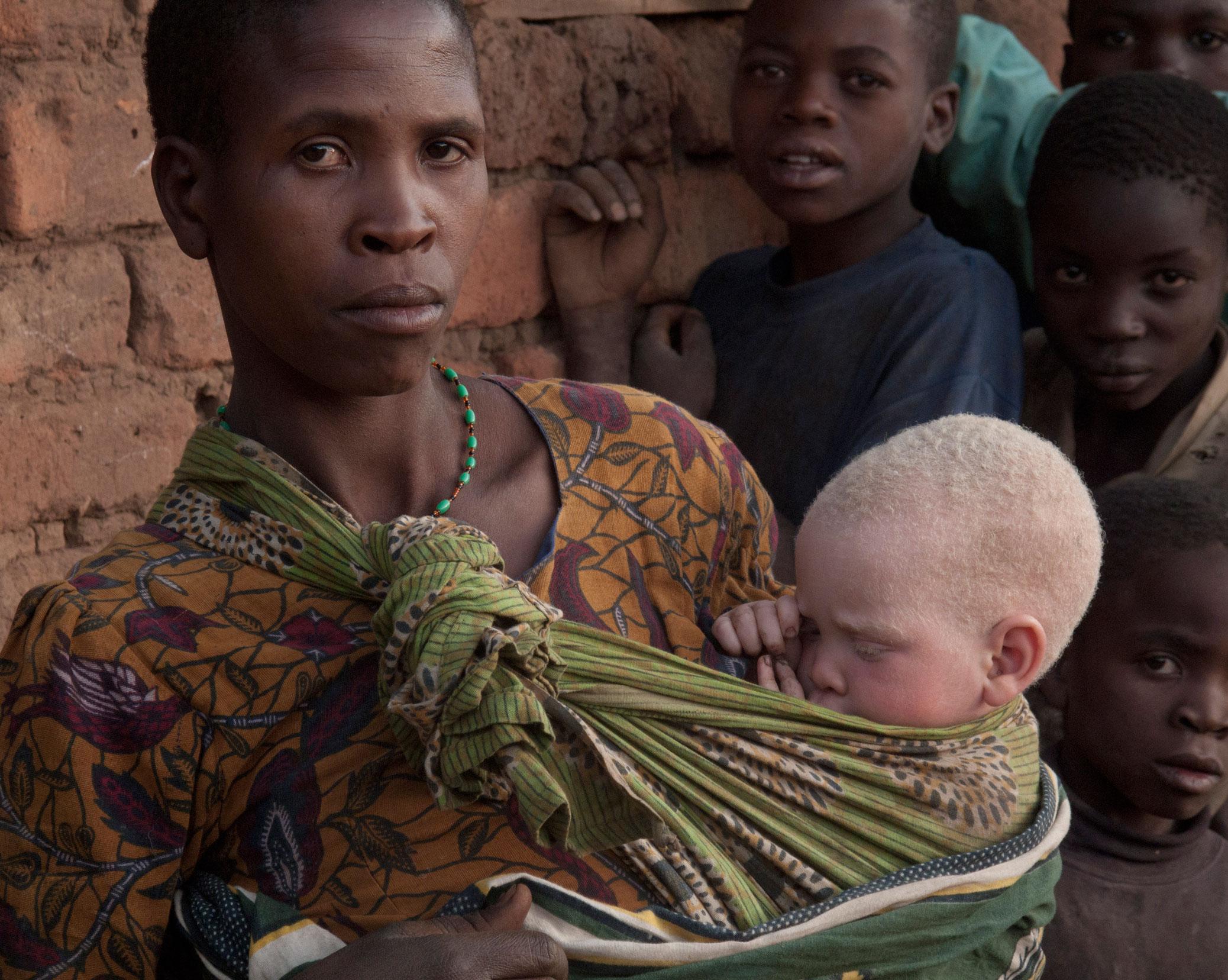 фото альбиносов африканцев назначил своим
